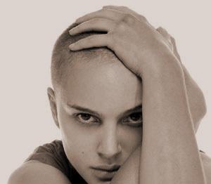Wat is Alopecia?