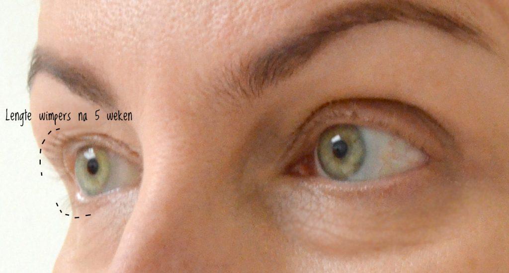 eyes-na