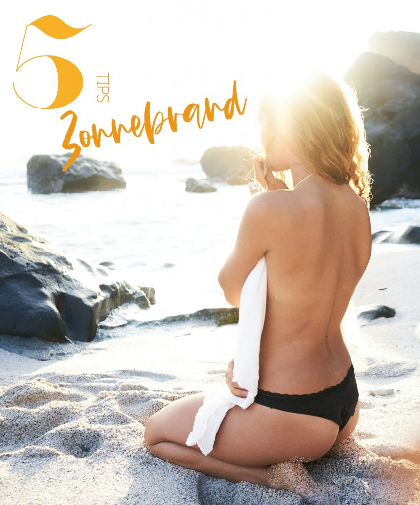 5 aftersun tips zonnebrand